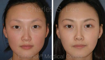 Blepharoplasty and Rhinoplasty before 426938