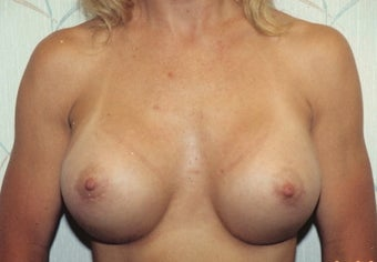 Breast Augmentation after 266794