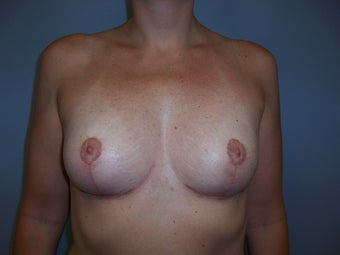 Breast Implant Removal and Breast Lift after 589916