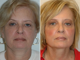 Facelift and upper and lower blepharoplasty. before 228963
