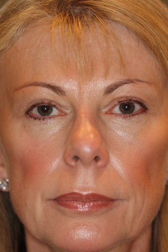 Upper and Lower Blepharoplasty after 312584