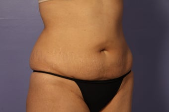 Liposuction after 588022