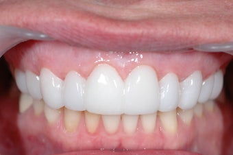 Combination Invisalign and Lumineers after 356802
