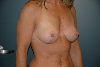 Breast lift after 146265