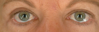 Botox for Wrinkle Treatment after 100338
