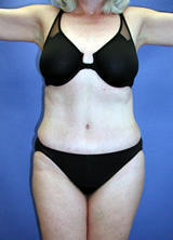 Abdominoplasty Surgery after 131919