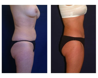 Tummy Tuck / Abdominoplasty before 55021