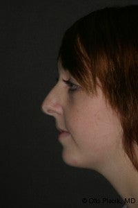 Chin Augmentation & Rhinoplasty before 565873