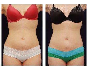 Liposuction before 391813