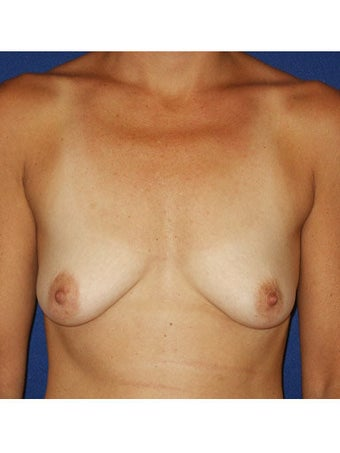Bilateral periareolar mastopexy augmentation with placement of 421cc smooth silicone breast implants before 249998