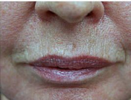 CO2 Fractional Laser Around Lips before 459874