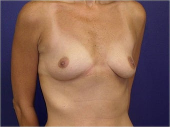 Breast Augmentation before 427306