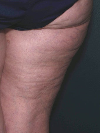 Cellulite treatment before 113275