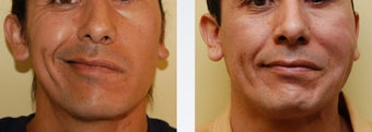 Facial Paralysis and Reconstruction before 346224