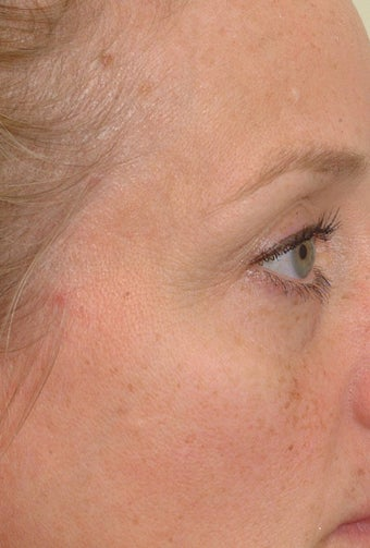 Pearl Laser Treatment before 102785