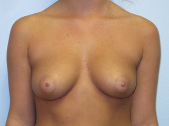Breast Augmentation  before 574774
