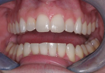 Invisalign after 372767