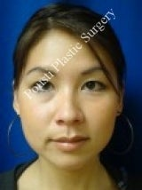 Ear Surgery (Otoplasty) after 579104