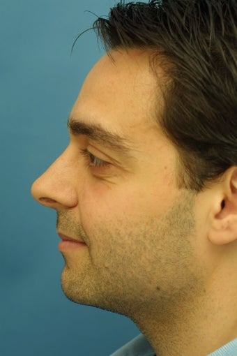 Male Rhinoplasty after 203556