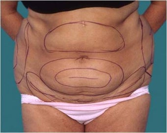Liposuction before 590650