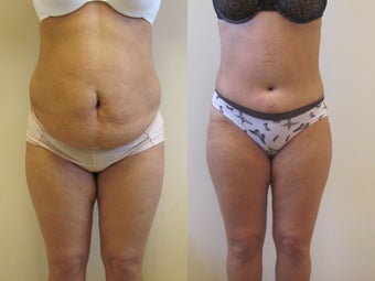 Abdominoplasty before 220767