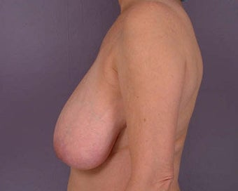 Breast Reduction before 285310