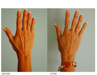 Hand Rejuvenation (with Fat Transfer) before 136430