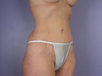 Tummy Tuck  after 304985