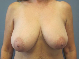 Breast Lift, Breast Reduction before 547969