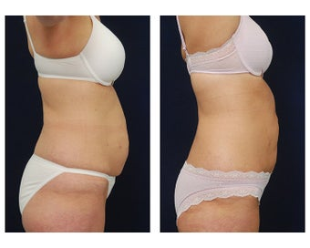 Liposuction 495485