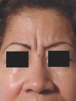 Botox for frown line (glabella)  before 91302