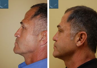 Revision Rhinoplasty before 346248