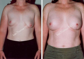 Breast Reconstruction before 243025
