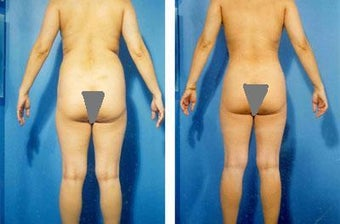 Liposuction before 636162