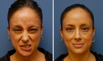 Botox for Synkinesis, Bell's Palsy, Facial Paralysis before 346230