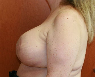 Breast Reduction after 485357