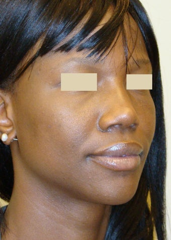 African American Rhinoplasty after 104226