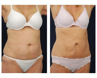 Liposuction after 495485