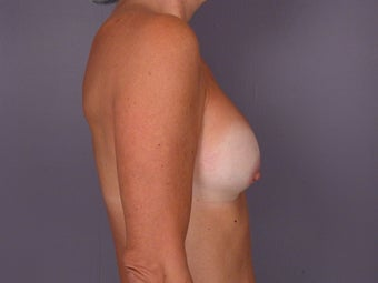 Circumareolar Breast Lift and Implants  before 307466