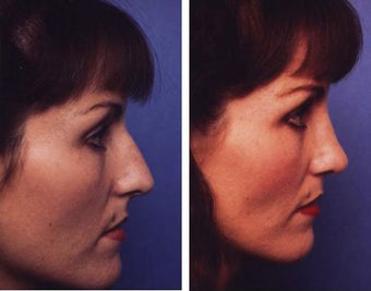 Rhinoplasty before 55726