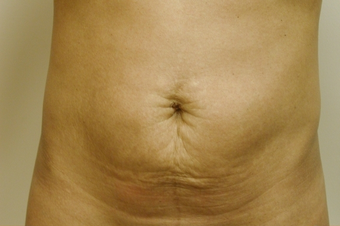 SmartLipo Abdomen before 141875