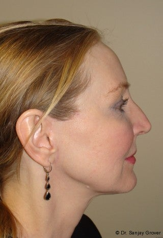 Facelift with browlift and lower blephorplasty 617176