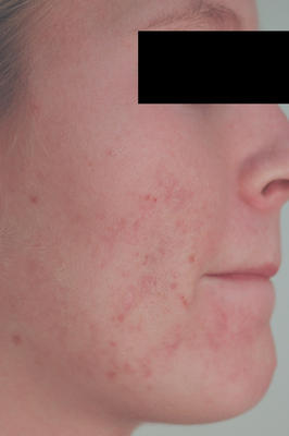 Laser Acne Treatment after 82978