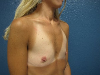 Breast Augmentation before 539059