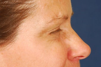 Botox Treatment of crow's feet after 492293