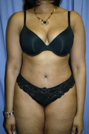 Tummy Tuck after 347086
