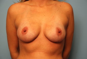 Bilateral Breast Reconstruction with Acellular Dermal Graft and Implants after 259123