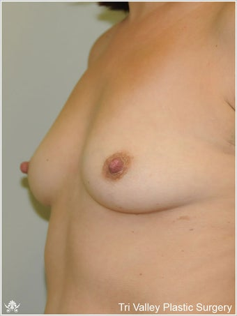 Breast Augmentation 420907