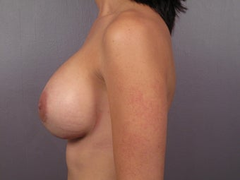 Breast Augmentation after 307438