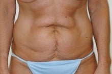 Tummy Tuck (Lipo Abdominoplasty) before 244000